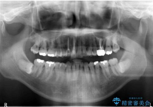 奥に引っ込んでいる歯をセラミックでかぶせたい 補綴前矯正 50代男性の治療後