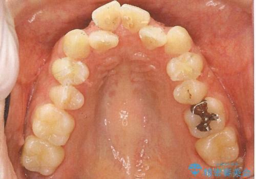 前歯のガタガタと出っ歯が気になる ハーフリンガルによる抜歯矯正の治療前