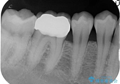 以前治療歯の中が虫歯になっている気がする セラミッククラウンによる再補綴の治療後