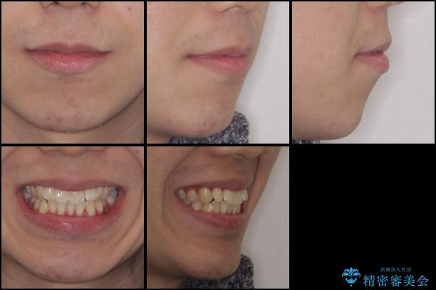 インビザラインで整った口元にの治療前(顔貌)