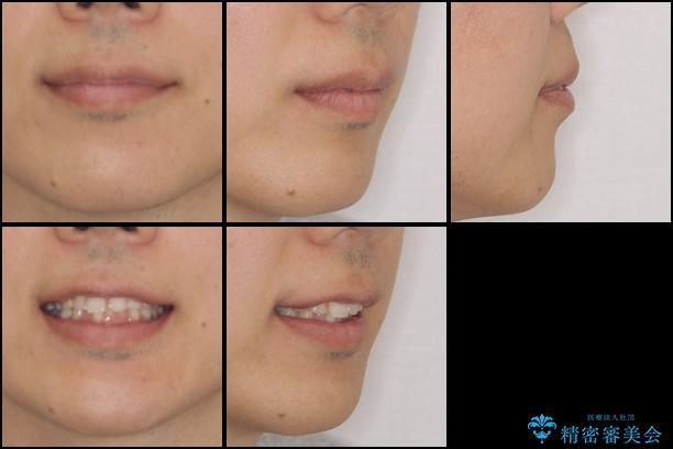 インビザライン矯正とインプラント補綴 深い咬み合わせと奥歯の欠損治療の治療前(顔貌)