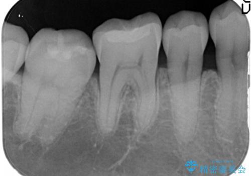 治療したむし歯の再治療。セラミックにしたい!の治療後