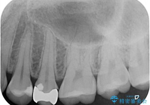 割れた歯を引っ張り出す 右上と左上の虫歯治療の治療前