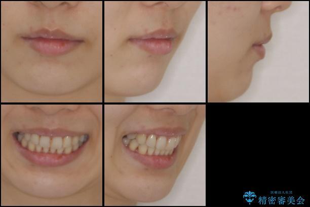 上顎骨拡大を併用したインビザライン矯正の治療後(顔貌)