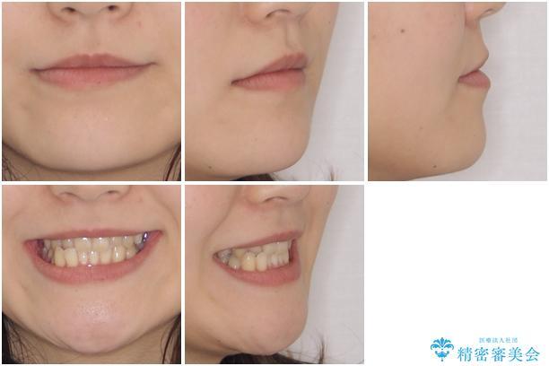 奥歯の反対咬合 上顎骨を拡大してインビザラインで矯正の治療前(顔貌)