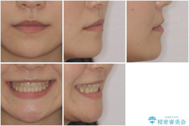 奥歯の反対咬合 上顎骨を拡大してインビザラインで矯正の治療後(顔貌)