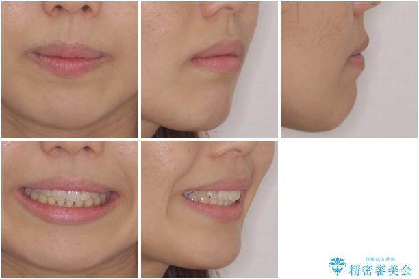 埋もれた八重歯を引っ張り出す 目立たない矯正装置の治療後(顔貌)