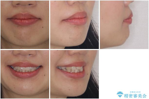 インビザラインで機能面に問題のある歯列を改善の治療前(顔貌)