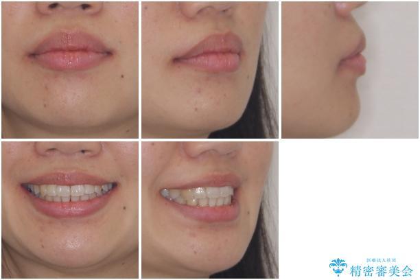 インビザラインで機能面に問題のある歯列を改善の治療後(顔貌)
