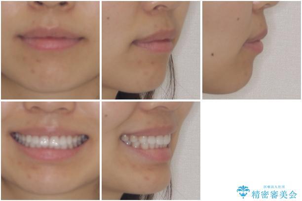 インビザラインによる軽度な出っ歯の矯正治療の治療後(顔貌)