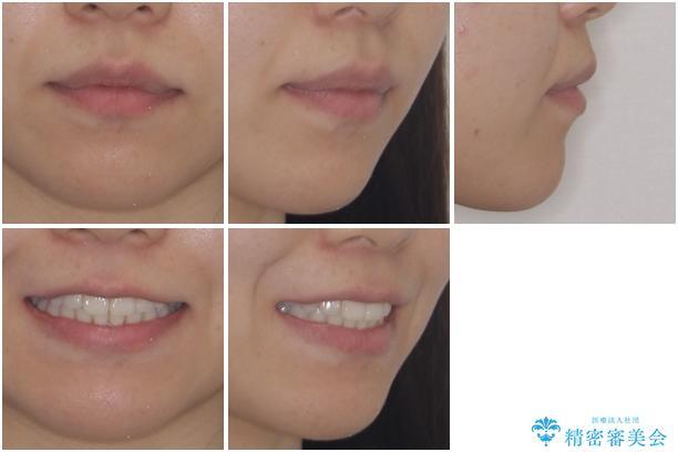 インビザライン矯正とインプラント治療と 総合歯科治療の治療後(顔貌)