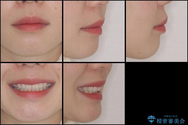 目立たない裏側矯正 抜歯矯正で口元を改善の治療後(顔貌)