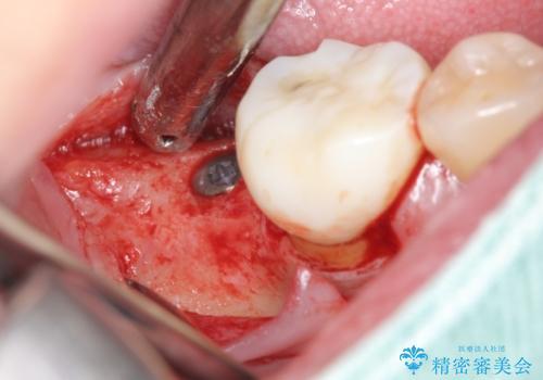 奥歯 インプラントによる機能回復の治療中