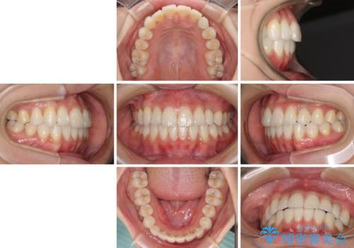 インビザライン矯正とインプラント治療と 総合歯科治療の治療後