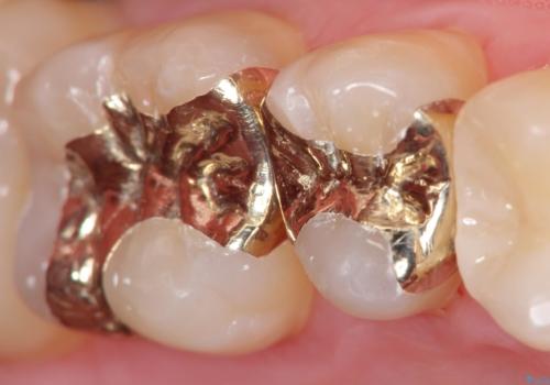 保険適応の白い詰め物レジンインレー下に再発した大きな虫歯治療の治療後