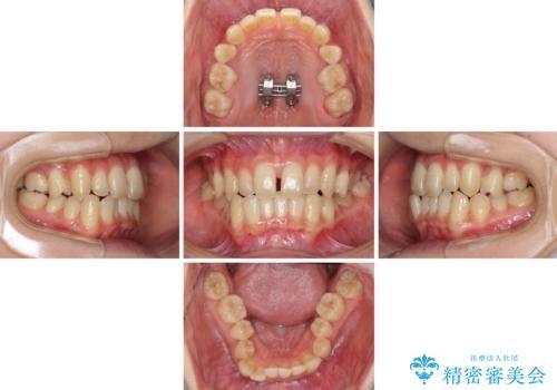 奥歯の反対咬合 上顎骨を拡大してインビザラインで矯正の治療中