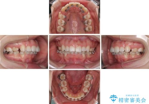 目立たない裏側矯正 抜歯矯正で口元を改善の治療中
