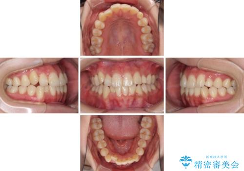 インビザライン矯正とインプラント治療と 総合歯科治療の治療中