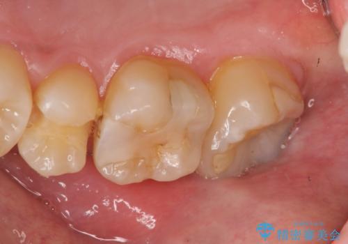 窩洞形態により選択するインレーの素材の治療前