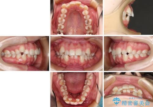 目立たない裏側矯正 抜歯矯正で口元を改善の治療前
