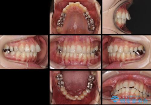 上顎骨拡大を併用したインビザライン矯正の治療前