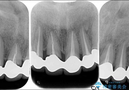 深い虫歯と不自然な色調の前歯 オールセラミッククラウンで自然にの治療前