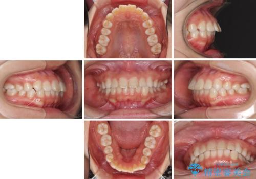 インビザラインによる軽度な出っ歯の矯正治療の治療前