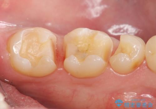 保険適応の白い詰め物レジンインレー下に再発した大きな虫歯治療の治療中