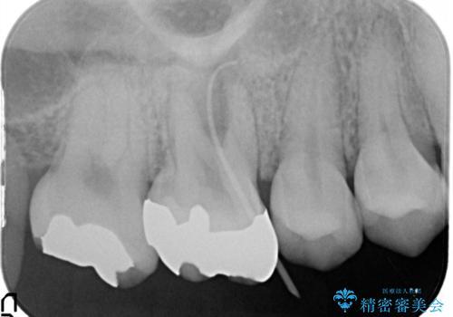 歯茎がはれてきた 根の治療をしてからのセラミック装着の治療前