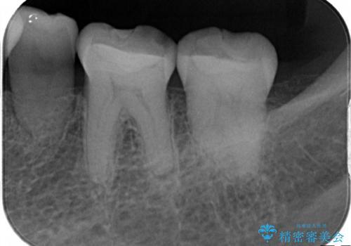 奥歯の被せ物をしたい。しみる奥歯、アイスを食べたい。の治療前