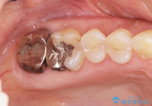 歯髄方向 歯肉方向へと深い 2種類の大きな虫歯の治療前