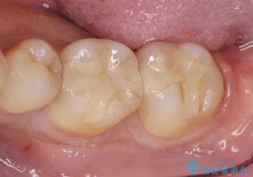 保険適応の白い詰め物レジンインレー下に再発した大きな虫歯治療の治療前