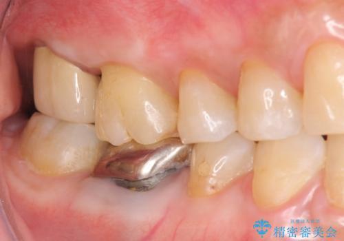 歯髄方向 歯肉方向へと深い 2種類の大きな虫歯の治療後
