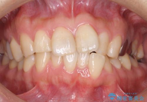 前歯の歯並びが気になる マウスピース矯正 30代女性の症例 治療前