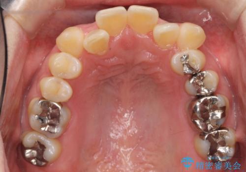 40代の矯正 八重歯を綺麗に の治療前