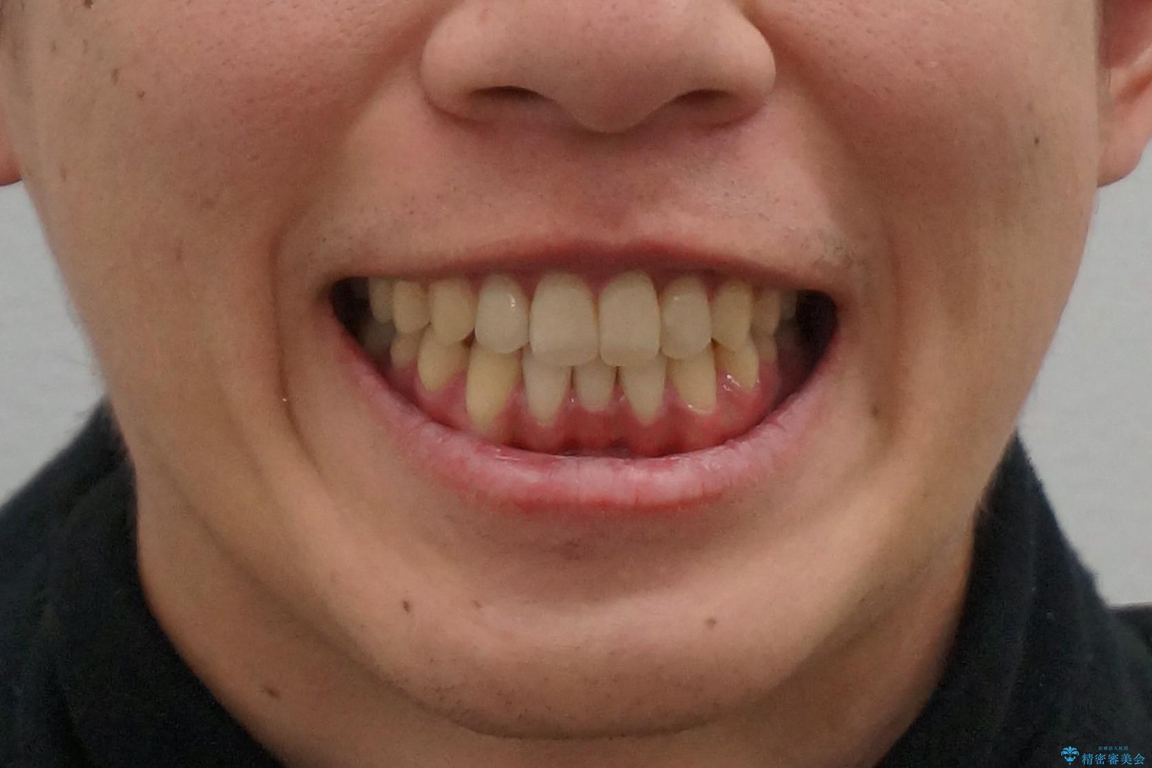 インビザライン矯正 神経のない歯をとって、全て天然歯に の治療後(顔貌)