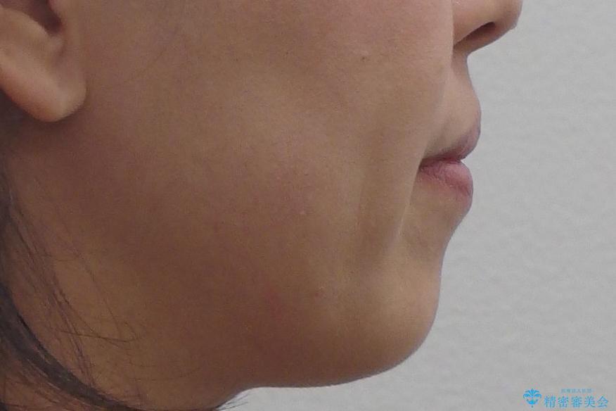 40代の矯正 八重歯を綺麗に の治療前(顔貌)