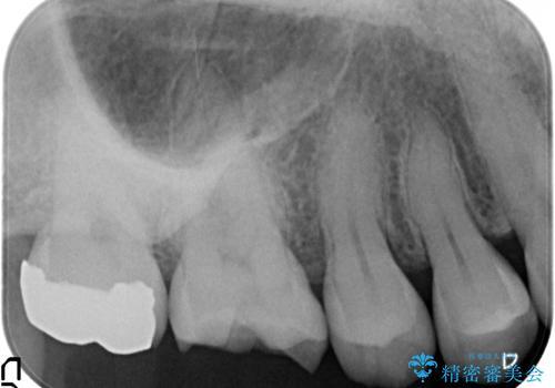 目立つ銀歯を白くしたい セラミック治療の治療前