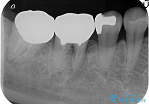 歯ぐきの腫れが治らない 石灰化した狭小根管治療の治療前
