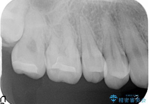 セラミックインレー 奥歯の治療の治療後