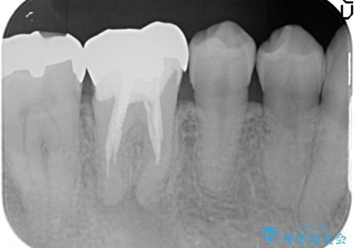 オールセラミッククラウン 咬むと疼く銀歯の治療の治療前