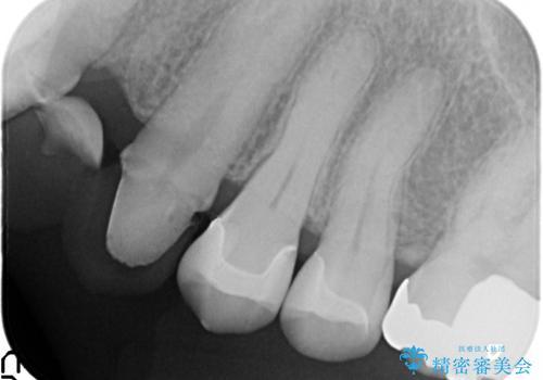 セラミックインレー 脱離した銀歯の治療の治療後