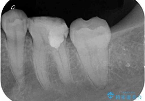 大きな虫歯で歯が欠けた 神経を極力残した治療の治療中
