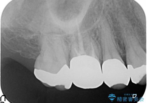 オールセラミッククラウン 咬合痛のある歯の治療の治療前
