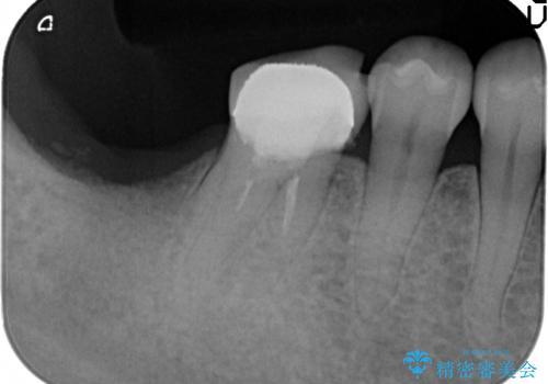 奥歯 インプラントによる機能回復の治療前