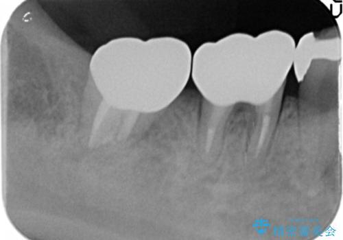 歯ぐきの腫れが治らない 石灰化した狭小根管治療の治療後