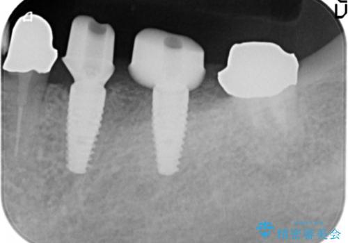 ブリッジ支台の歯の痛み インプラントによる咬合負担の治療中