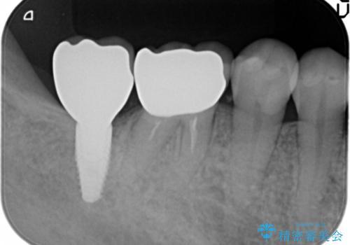 奥歯 インプラントによる機能回復の治療後
