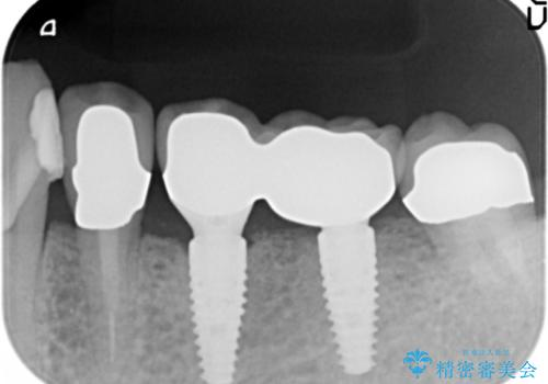 ブリッジ支台の歯の痛み インプラントによる咬合負担の治療後
