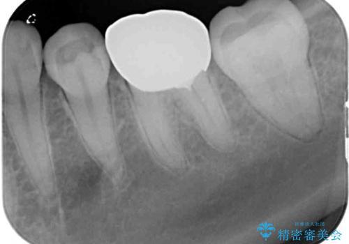 大きな虫歯で歯が欠けた 神経を極力残した治療の治療後